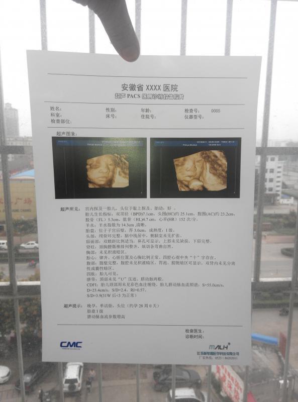 半透激光医用干式胶片(超声科)打印耗材