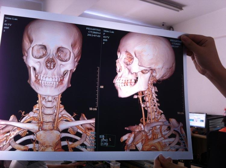 瓷白喷墨医用干式胶片(超声科)