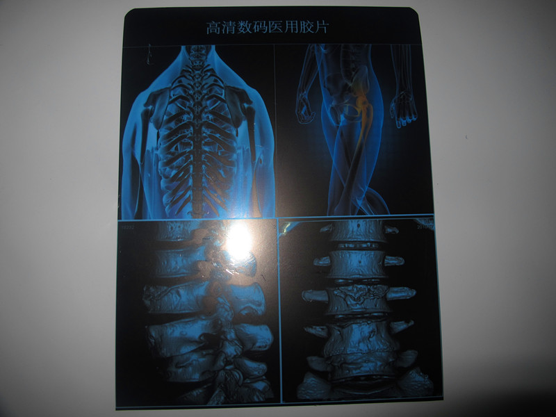 医用(激光)干式蓝基胶片