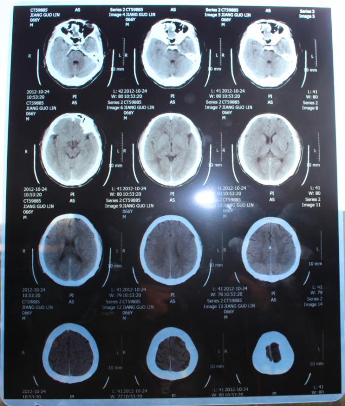 医用喷墨蓝基胶片(主要用于CT,核磁,X光等)